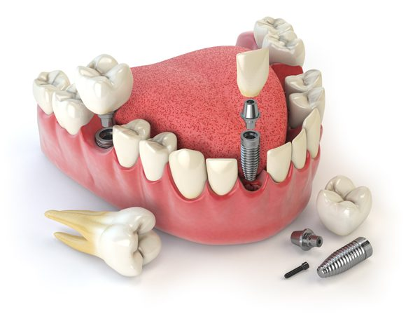 Implantes Dentales de Titanio